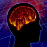 cerveausclerose