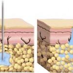 Des injections sans aiguille