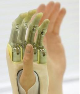 doigtsbioniques