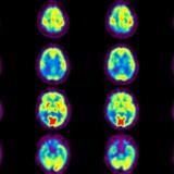 Prédire la maladie d'Alzheimer 3 ans à l'avance